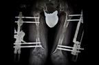 acondroplasia_10_big_DSC1042.jpg